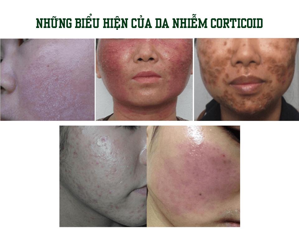 Cách nhận biết da bạn đã nhiễm Corticoid – thành phần chất lột tẩy có trong kem trộn