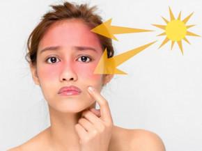 Những nguyên nhân khiến da ngày càng nhạy cảm mà không phải ai cũng biết.