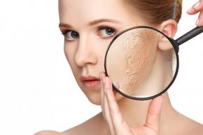 Tất tần tật về da khô và cách chăm sóc da khô