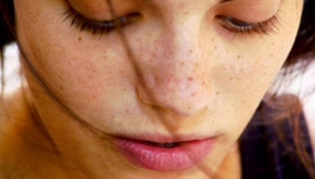 Nguyên nhân gây nám da và cách điều trị