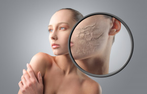 Nhận biết dấu hiệu cho thấy da bạn đang bị hư tổn để kịp thời khắc phục
