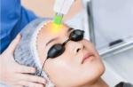 Da yếu sau điều trị LASER phục hồi nhanh chóng với quy trình dưỡng da đúng đắn